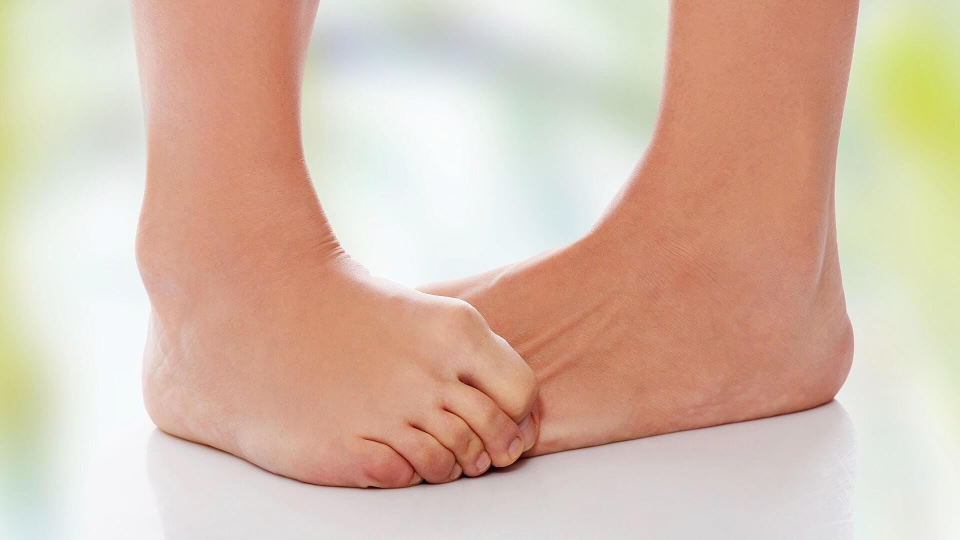 Как исправить вальгусное искривление ног у взрослого