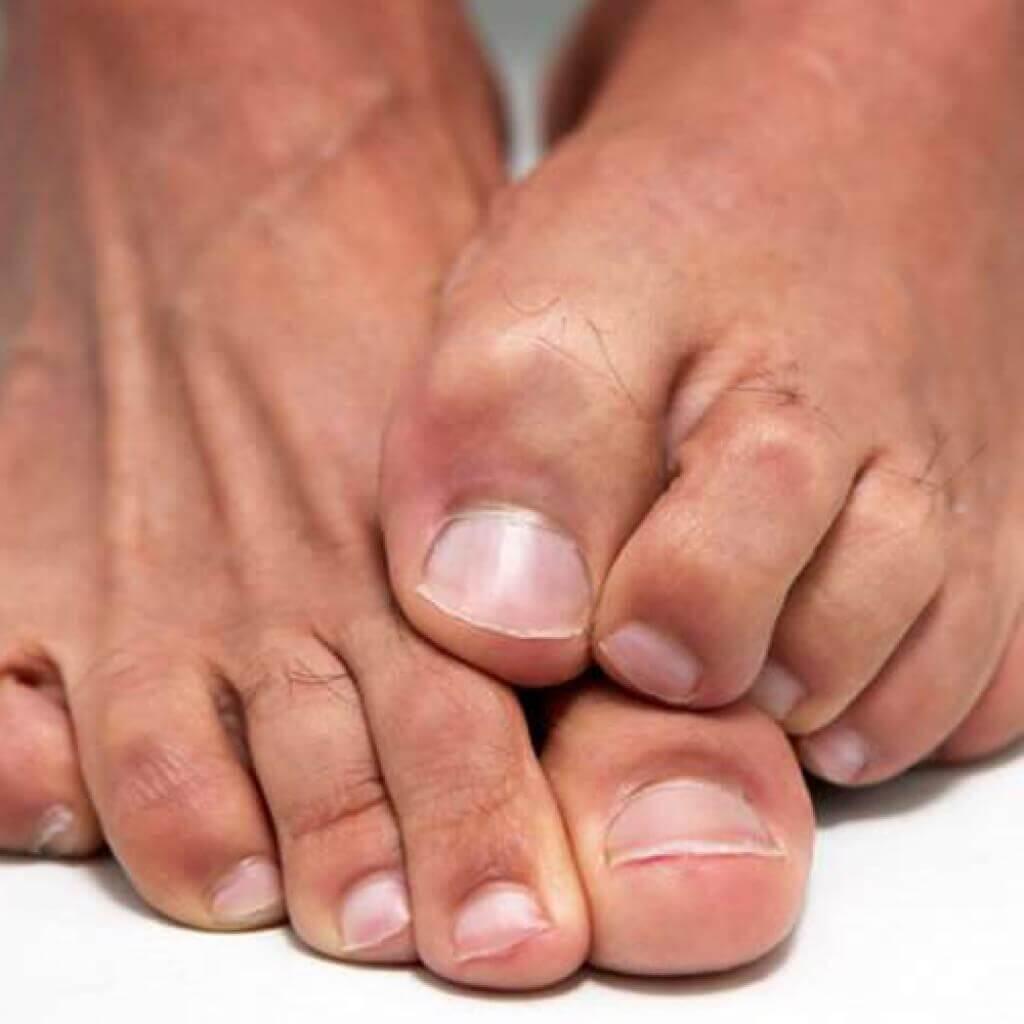 Как лечить грибок на ногтях ног народными средствами