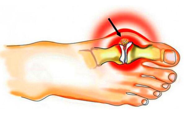 Как обезболить если болит косточка на ноге