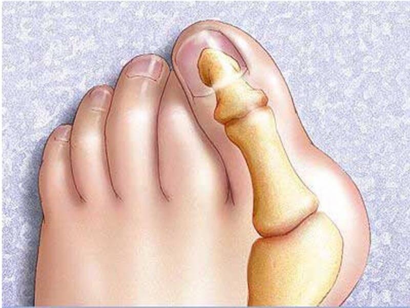 Растущая косточка на большом пальце ноги и как ее лечить